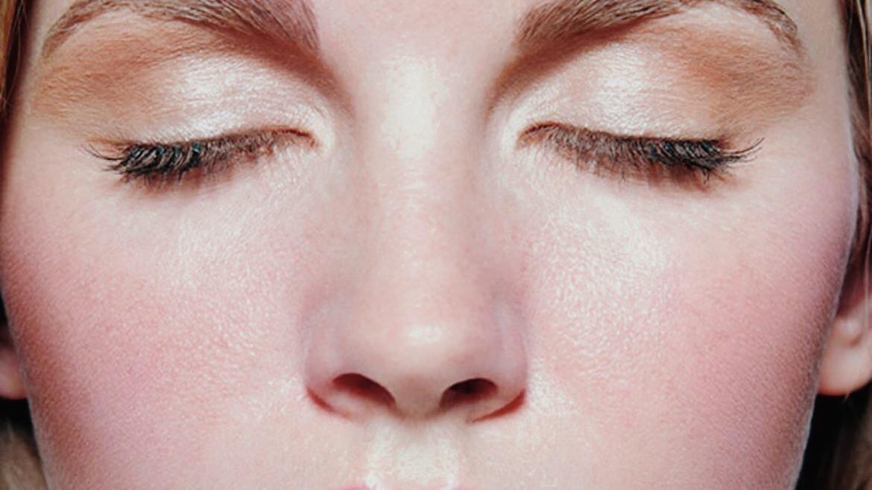 Comment soigner sa rosacée au naturel - Claire Andreewitch